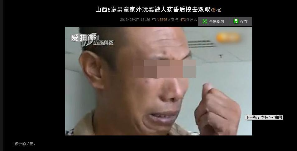 山西6岁男童在家外玩耍被人药昏后挖去双眼